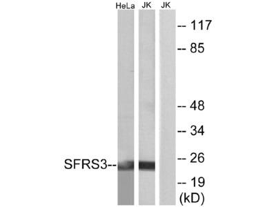 Anti-SFRS3 Antibody