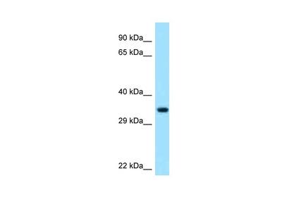 Anti-PECR Antibody