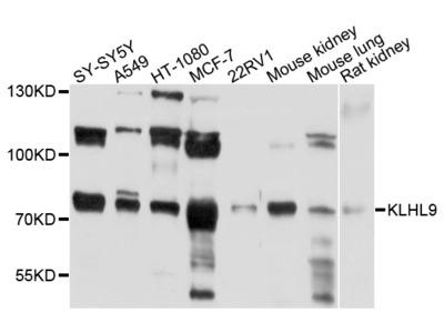 Anti-Kelch-like protein 9 KLHL9 Antibody