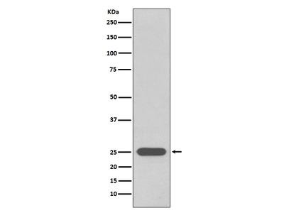 Anti-PGP9.5 Rabbit Monoclonal Antibody