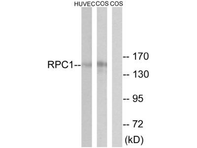 Anti-RPC1 Antibody