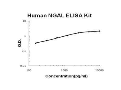 Human Lipocalin-2/NGAL EZ-Set ELISA Kit (DIY Antibody Pairs)