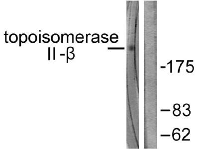 Anti-TOP2B/Topoisomerase Ii Beta Antibody