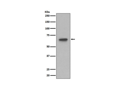 Anti-S6K1 Rabbit Monoclonal Antibody