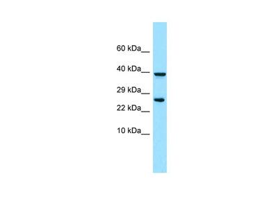 Anti-PGFRL PDGFRL Antibody