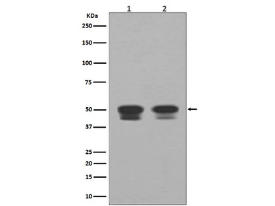 Anti-p53 Rabbit Monoclonal Antibody