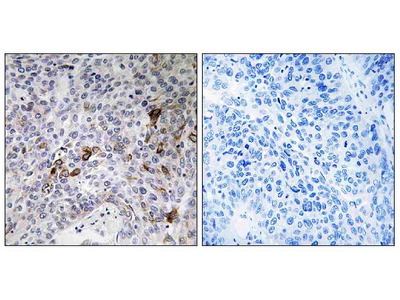 Anti-RAB11FIP3 Antibody