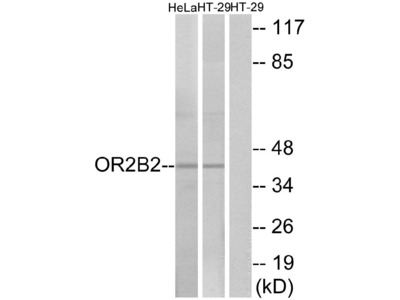 Anti-OR2B2 Antibody