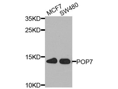 Anti-THO complex subunit 1 THOC1 Antibody