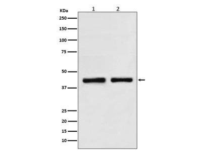 Anti-SNF5 Rabbit Monoclonal Antibody