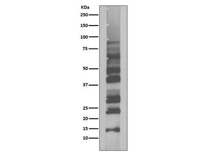 Anti-K63-linkage Specific Ubiquitin Rabbit Monoclonal Antibody