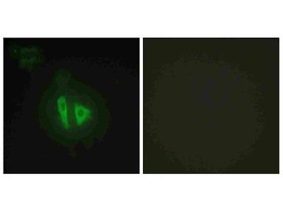 Anti-A-kinase anchor protein 11 AKAP11 Antibody