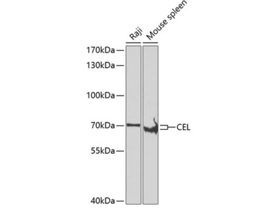 Anti-CEL/Carboxyl Ester Lipase Antibody