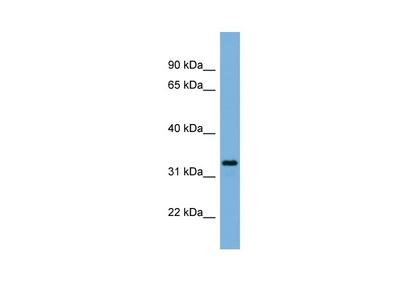 Anti-PX11A PEX11A Antibody