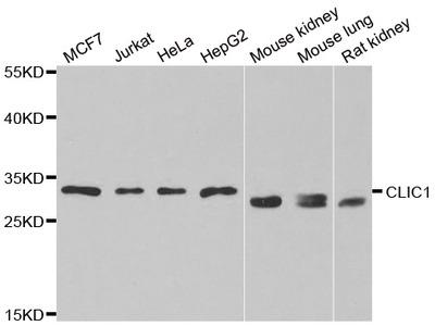 Anti-C4b-binding protein beta chain C4BPB Antibody