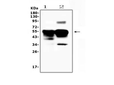 Anti-Retinal S antigen/SAG Picoband Antibody