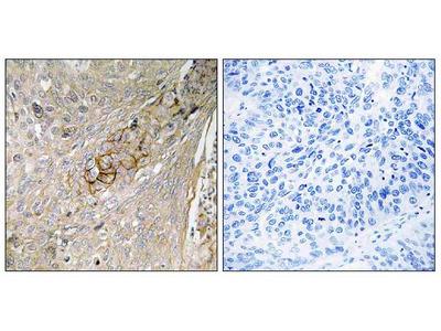 Anti-SLC6A6/Taut Antibody