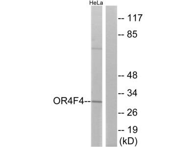 Anti-OR4F4 Antibody
