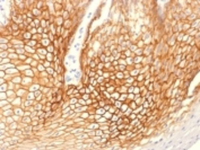 Anti-Catenin, gamma (Cardiomyocyte Marker) JUP Monoclonal Antibody