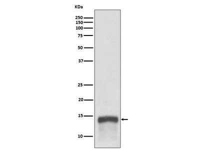 Anti-S100A9 Rabbit Monoclonal Antibody