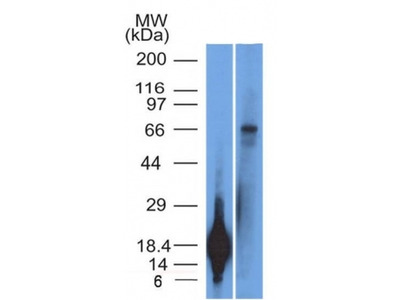 Anti-TRIM29 (Lung Squamous Cell Carcinoma Marker) Monoclonal Antibody