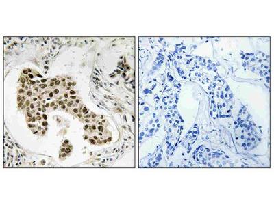 Anti-PMS2/PMS2CL Antibody