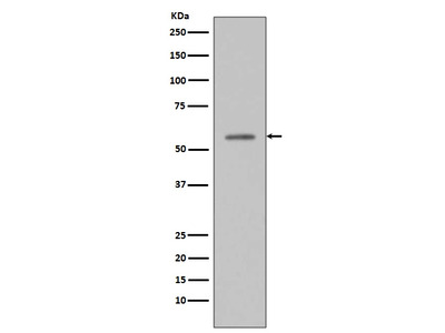 Anti-Phospho-p53 (S33) Rabbit Monoclonal Antibody