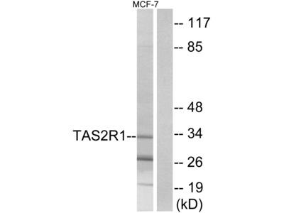 Anti-Taste receptor type 2 member 1 TAS2R1 Antibody
