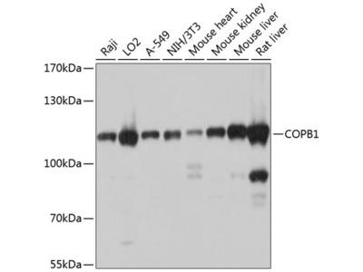 Anti-Coatomer subunit beta COPB1 Antibody
