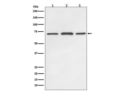 Anti-SDHA Rabbit Monoclonal Antibody