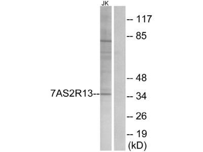 Anti-TAS2R13 Antibody