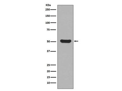 Anti-Cytokeratin 16 Rabbit Monoclonal Antibody