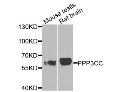 Anti-PPP3CC Antibody