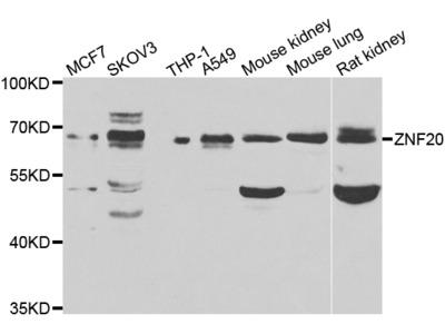 Anti-Zinc finger protein 20 ZNF20 Antibody