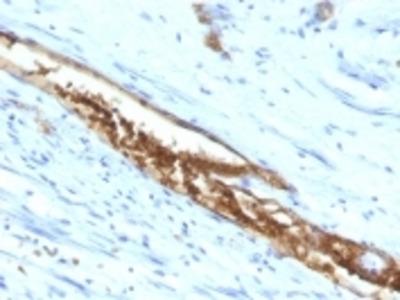 Anti-Blood Group Antigen A (CD173) Monoclonal Antibody