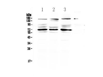 Anti-L17A Receptor/IL17RA Picoband Antibody