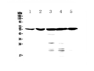 Anti-Bile Acid Receptor NR1H4 Picoband Antibody