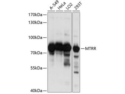 Anti-MTRR Antibody