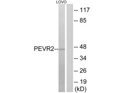Anti-PEVR2 Antibody