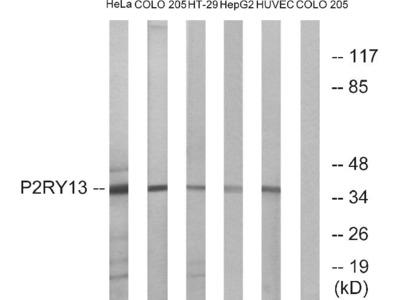 Anti-P2RY13/P2Y13 Antibody