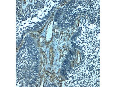 Anti-Palmdelphin PALMD Antibody