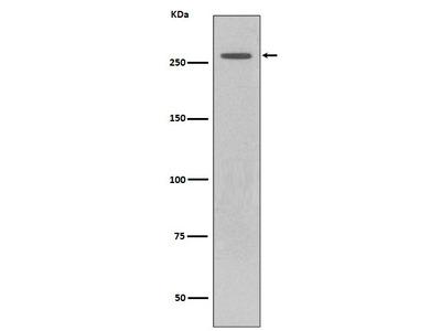 Anti-LRRK2 Rabbit Monoclonal Antibody