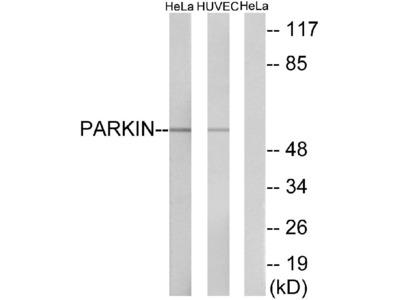 Anti-Parkin Antibody