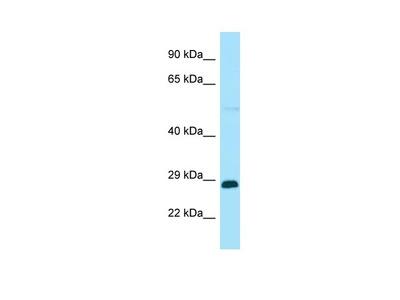 Anti-RABGAP1L Antibody