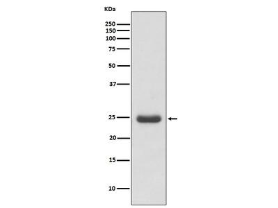 Anti-Thymidine Kinase 1 Rabbit Monoclonal Antibody