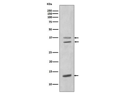 Anti-CEBP beta Rabbit Monoclonal Antibody