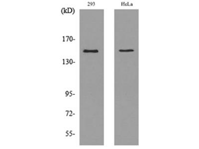 Anti-PTPRJ/Dep1 Antibody