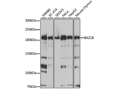 Anti-Tyrosine-protein kinase BAZ1B BAZ1B Antibody