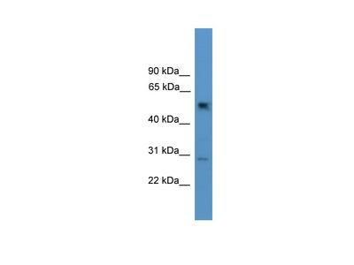 Anti-2ABG PPP2R2C Antibody