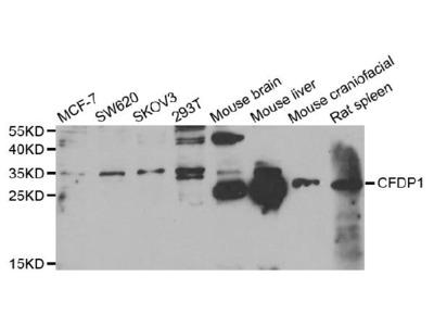 Anti-Thioredoxin-like protein 1 TXNL1 Antibody